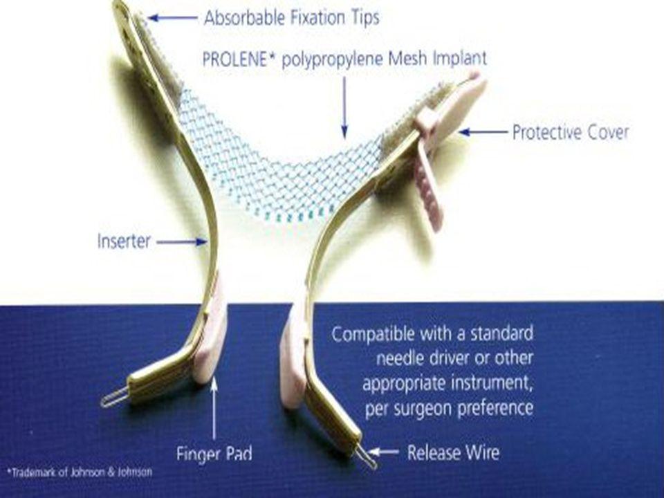 TVT secur (midüretral minisling) temel olarak obturator internus kasını geçerek esnek olmayan daha az esnek olan fiksasyon sağlar