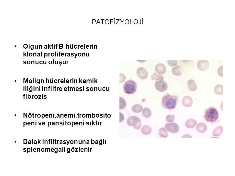 PATOFİZYOLOJİ Olgun aktif B hücrelerin klonal proliferasyonu sonucu oluşur. Malign hücrelerin kemik iliğini infiltre etmesi sonucu fibrozis.