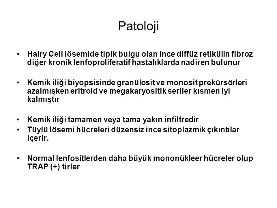 Patoloji Hairy Cell lösemide tipik bulgu olan ince diffüz retikülin fibroz diğer kronik lenfoproliferatif hastalıklarda nadiren bulunur.