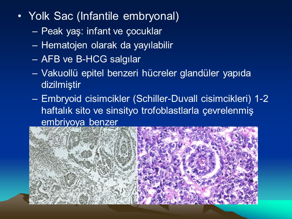 Yolk Sac (Infantile embryonal)