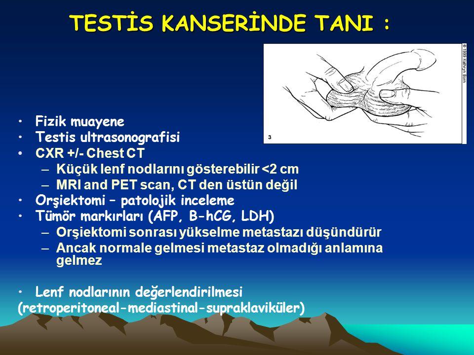 TESTİS KANSERİNDE TANI :