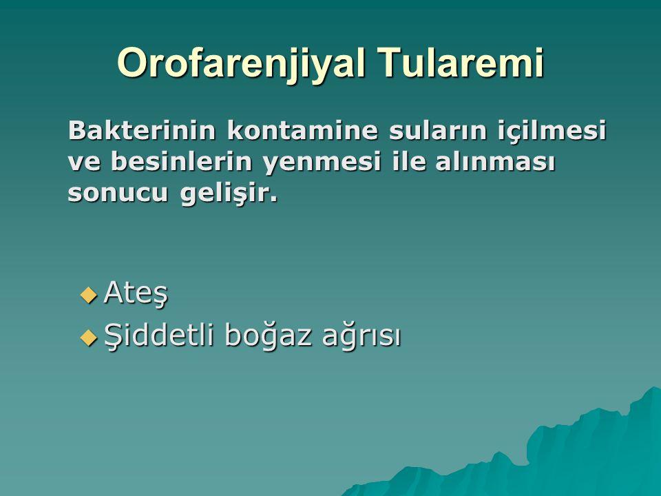 Orofarenjiyal Tularemi