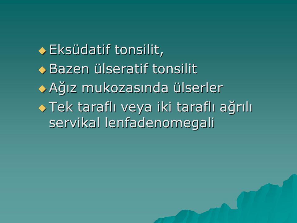 Eksüdatif tonsilit, Bazen ülseratif tonsilit. Ağız mukozasında ülserler.