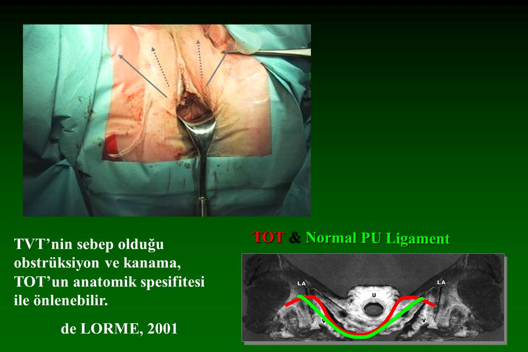 TOT & Normal PU Ligament