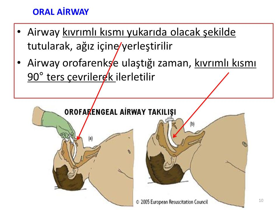 ORAL AİRWAY