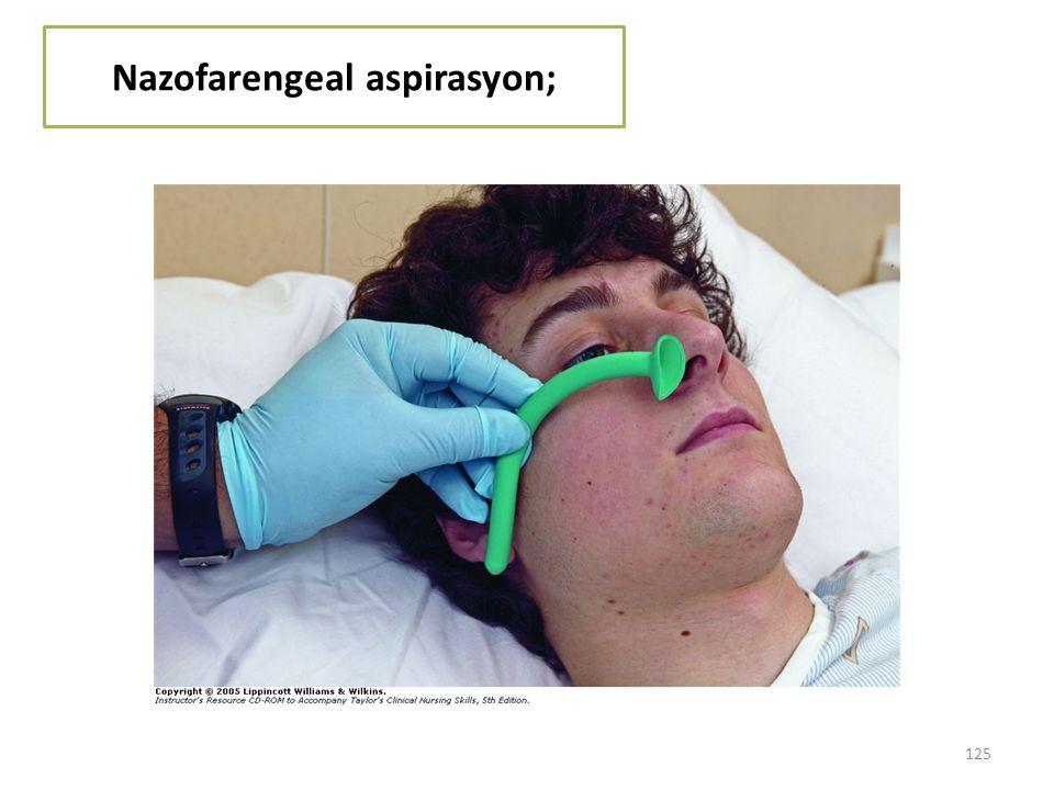Nazofarengeal aspirasyon;