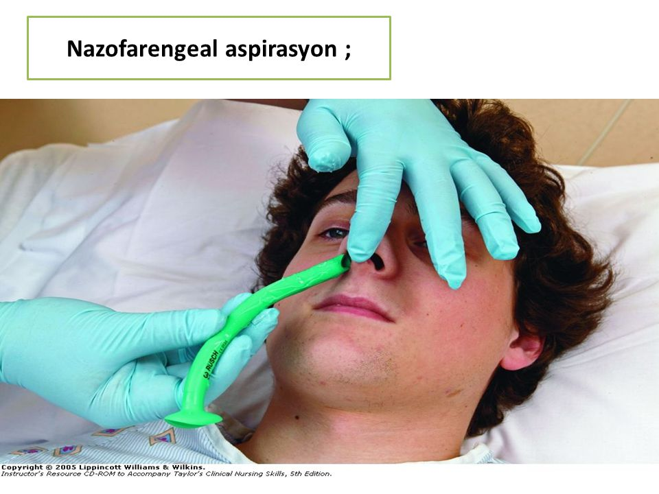 Nazofarengeal aspirasyon ;