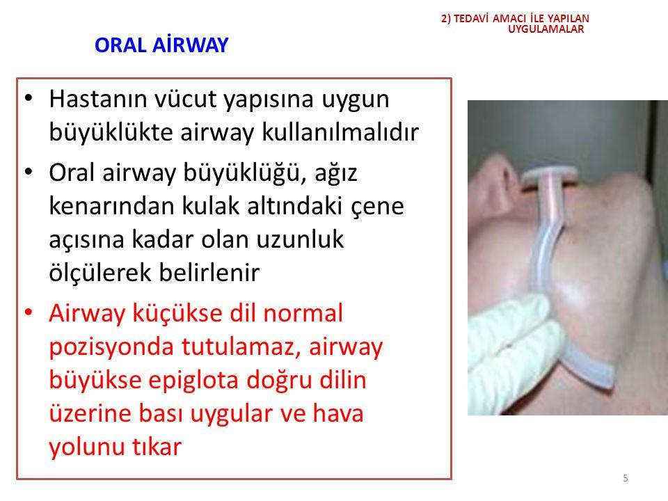 Uygun büyüklükte airway Bebek ve çocuklar için: 1-2 numara