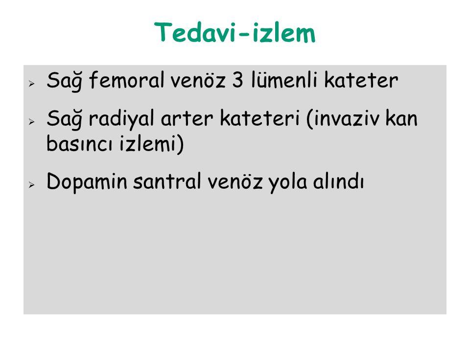 Tedavi-izlem Sağ femoral venöz 3 lümenli kateter