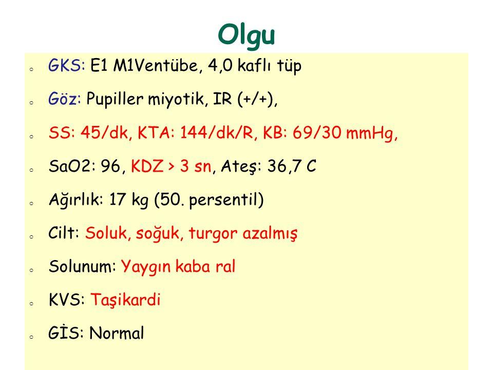 Olgu GKS: E1 M1Ventübe, 4,0 kaflı tüp Göz: Pupiller miyotik, IR (+/+),