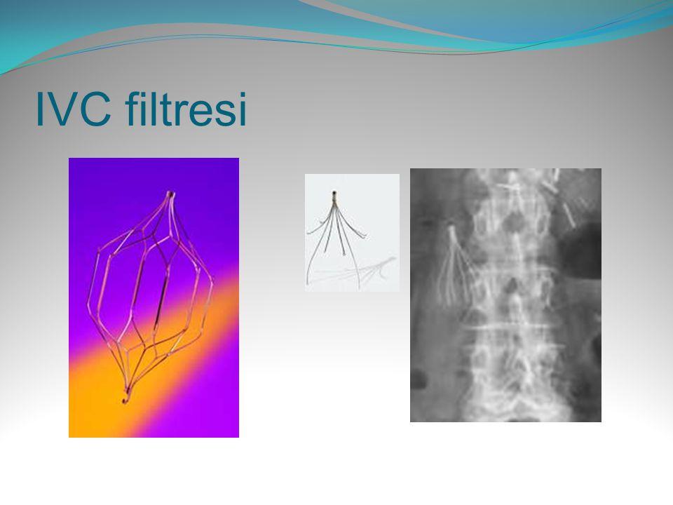 IVC filtresi