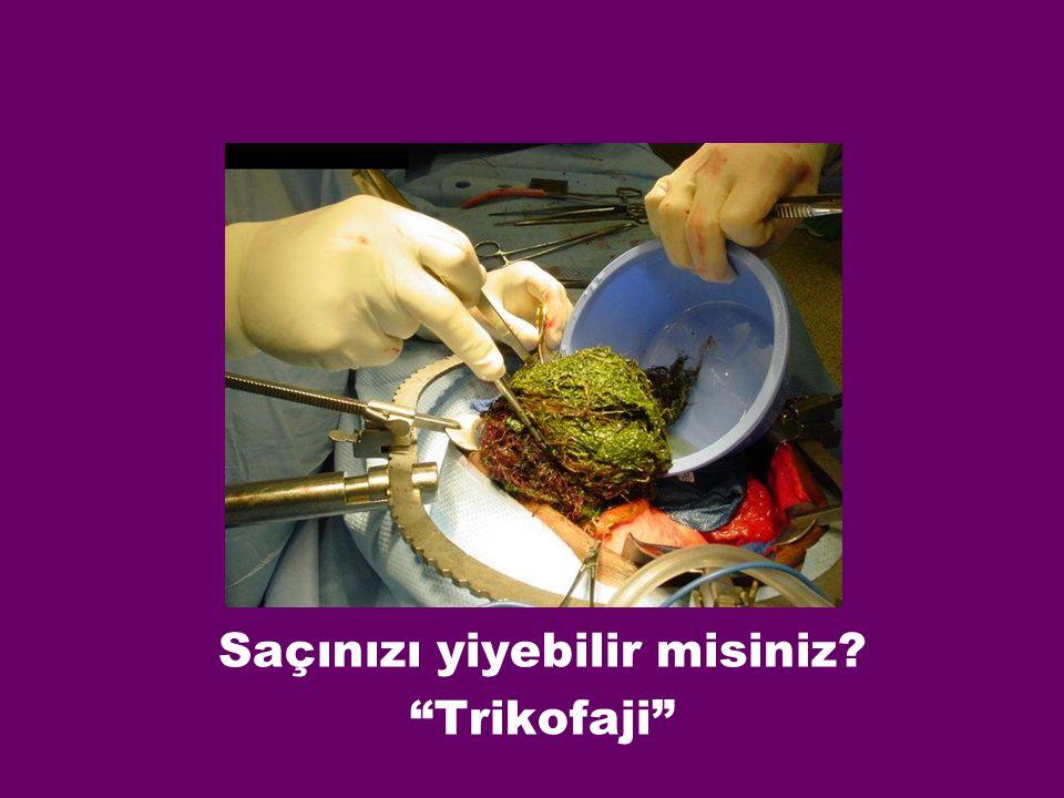Saçınızı yiyebilir misiniz Trikofaji