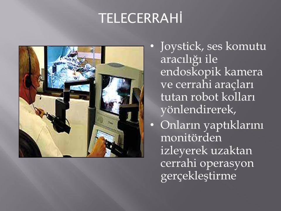 TELECERRAHİ Joystick, ses komutu aracılığı ile endoskopik kamera ve cerrahi araçları tutan robot kolları yönlendirerek,