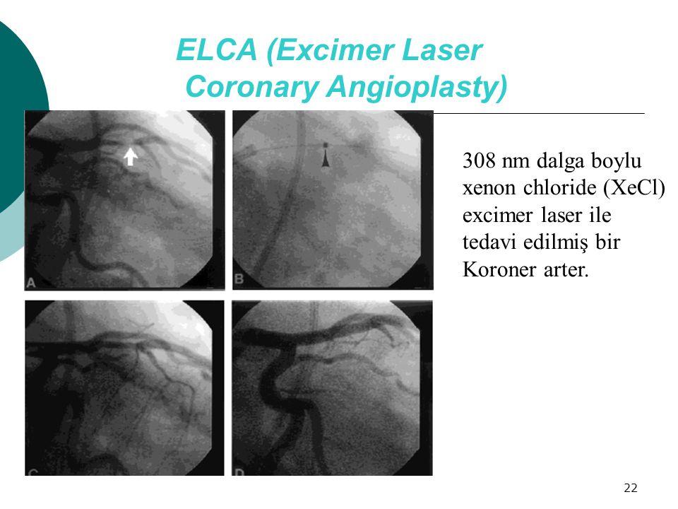 ELCA (Excimer Laser Coronary Angioplasty)