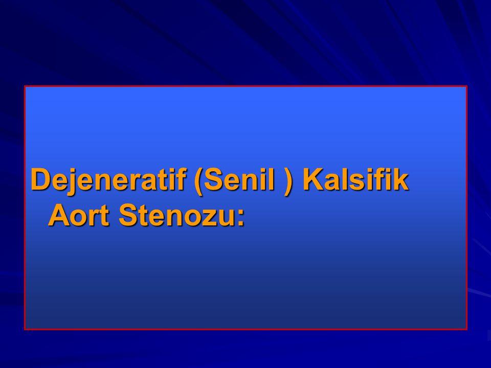 Dejeneratif (Senil ) Kalsifik Aort Stenozu: