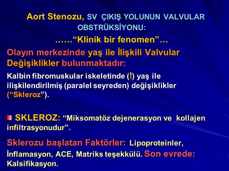 Aort Stenozu, SV ÇIKIŞ YOLUNUN VALVULAR OBSTRÜKSİYONU: