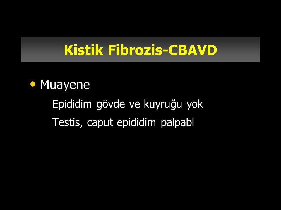Kistik Fibrozis-CBAVD