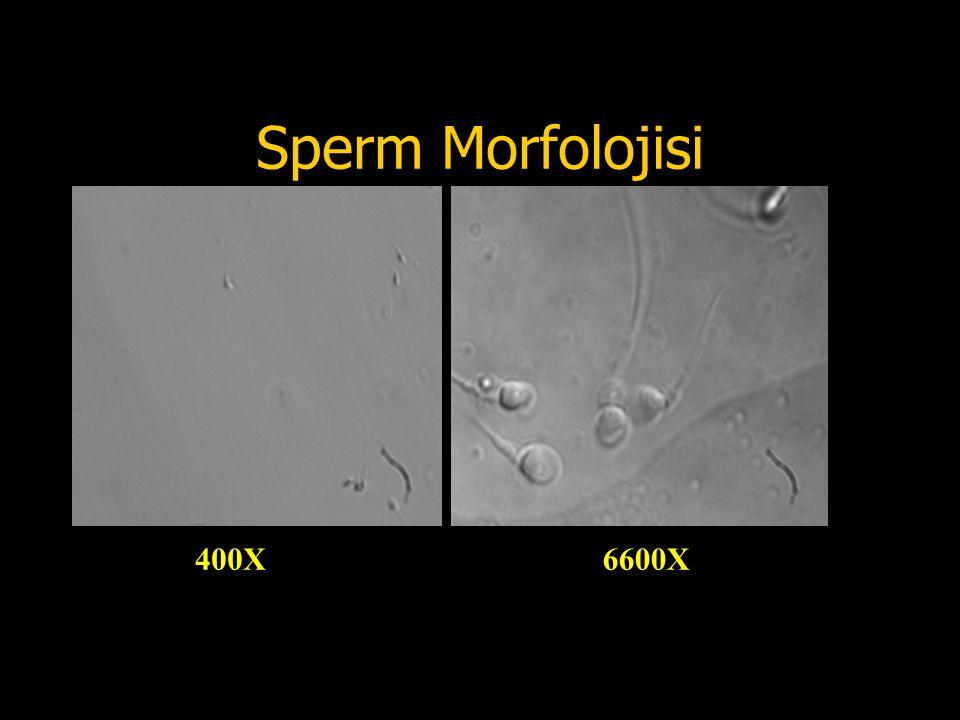 Sperm Morfolojisi 400X 6600X