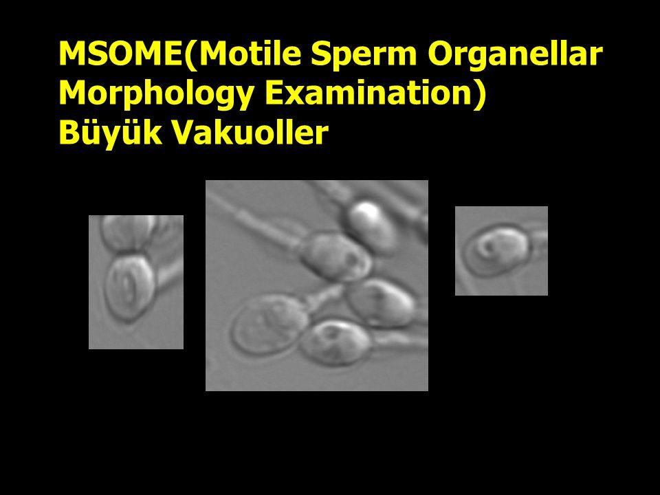 MSOME(Motile Sperm Organellar Morphology Examination) Büyük Vakuoller