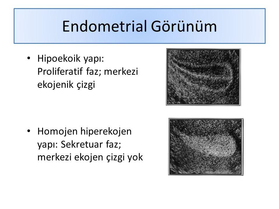 Endometrial Görünüm Hipoekoik yapı: Proliferatif faz; merkezi ekojenik çizgi.