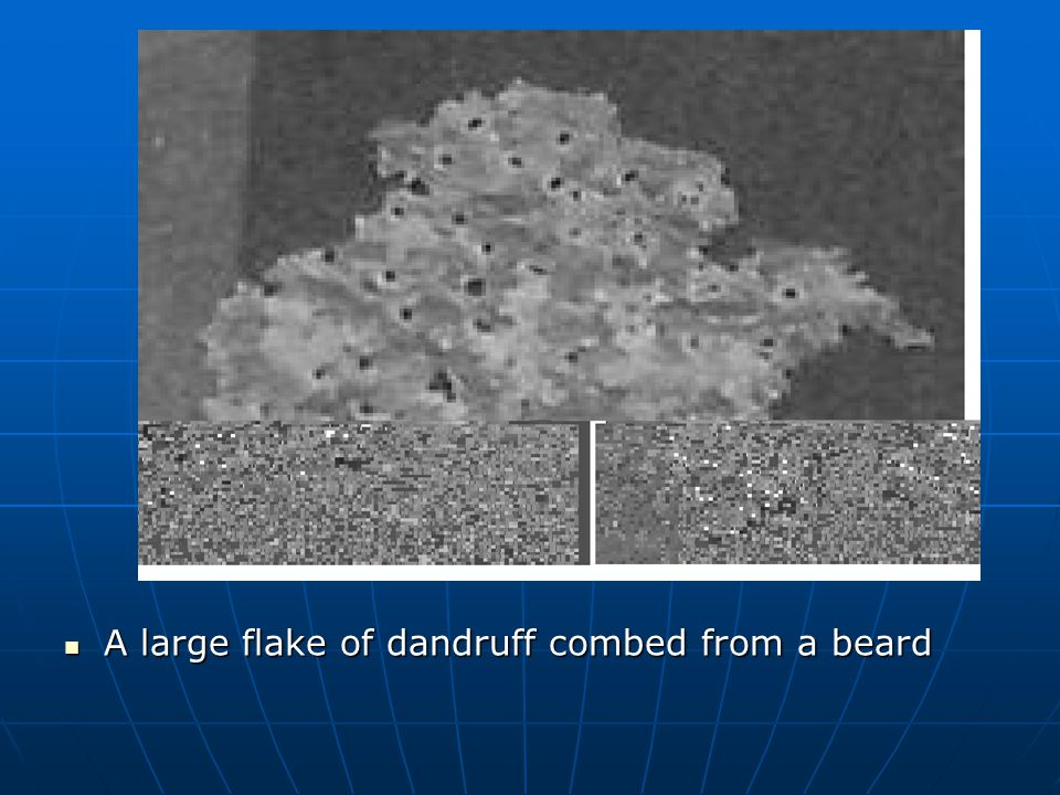 A large flake of dandruff combed from a beard