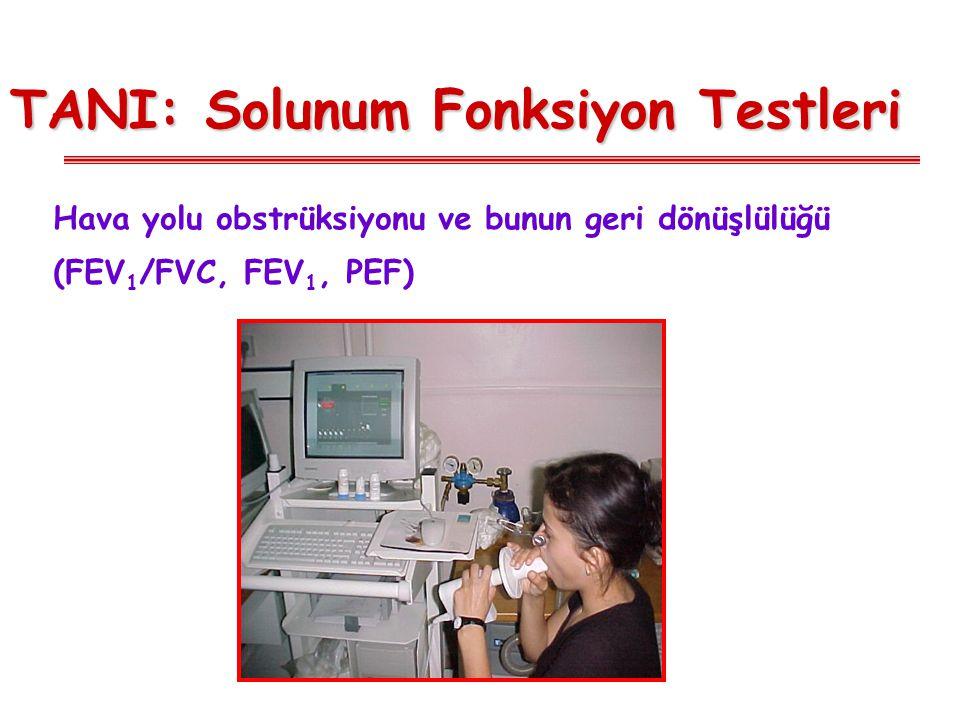 TANI: Solunum Fonksiyon Testleri