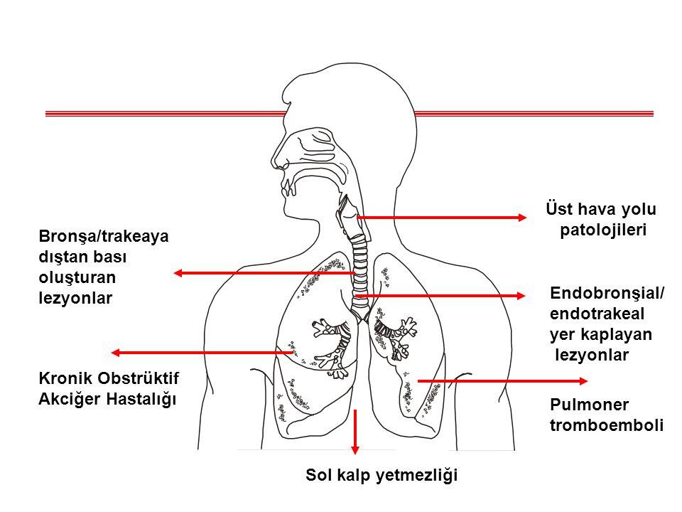 Kronik Obstrüktif Akciğer Hastalığı. Endobronşial/ endotrakeal. yer kaplayan. lezyonlar. Üst hava yolu.