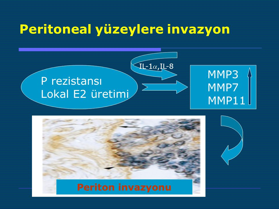 Peritoneal yüzeylere invazyon