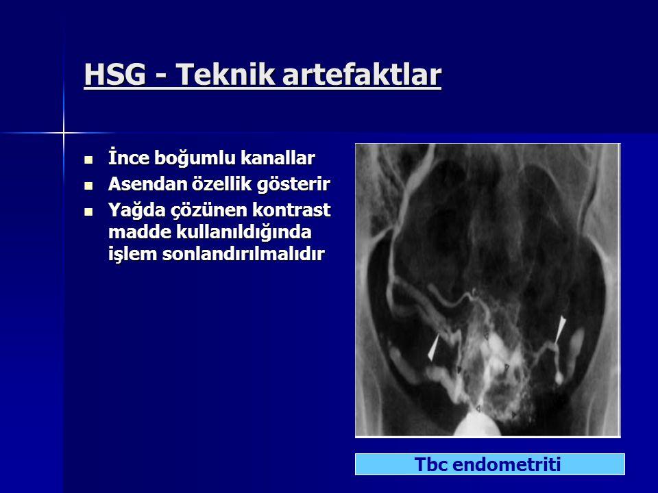 HSG - Teknik artefaktlar