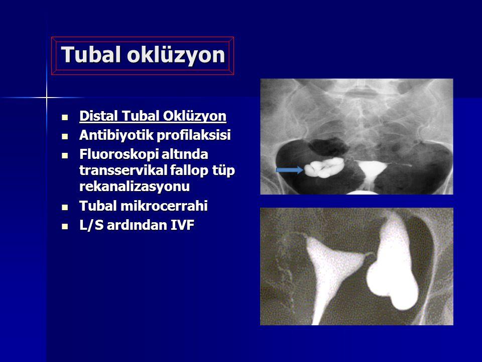 Tubal oklüzyon Distal Tubal Oklüzyon Antibiyotik profilaksisi
