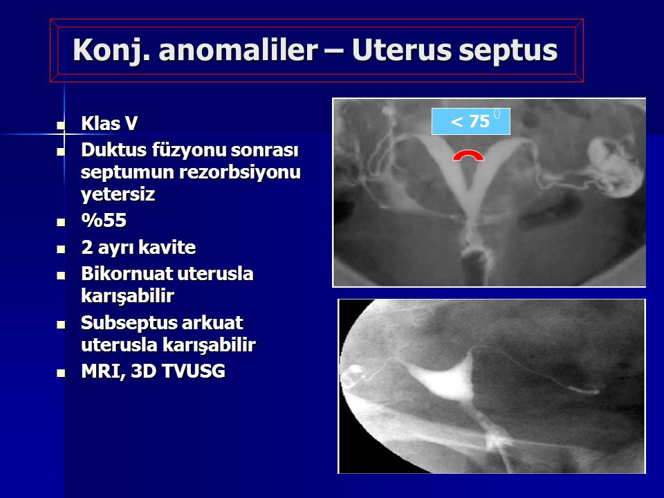 Konj. anomaliler – Uterus septus