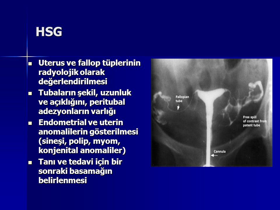 HSG Uterus ve fallop tüplerinin radyolojik olarak değerlendirilmesi