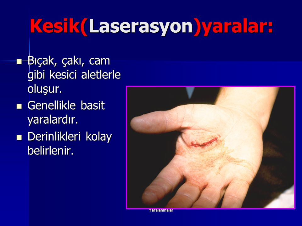 Kesik(Laserasyon)yaralar: