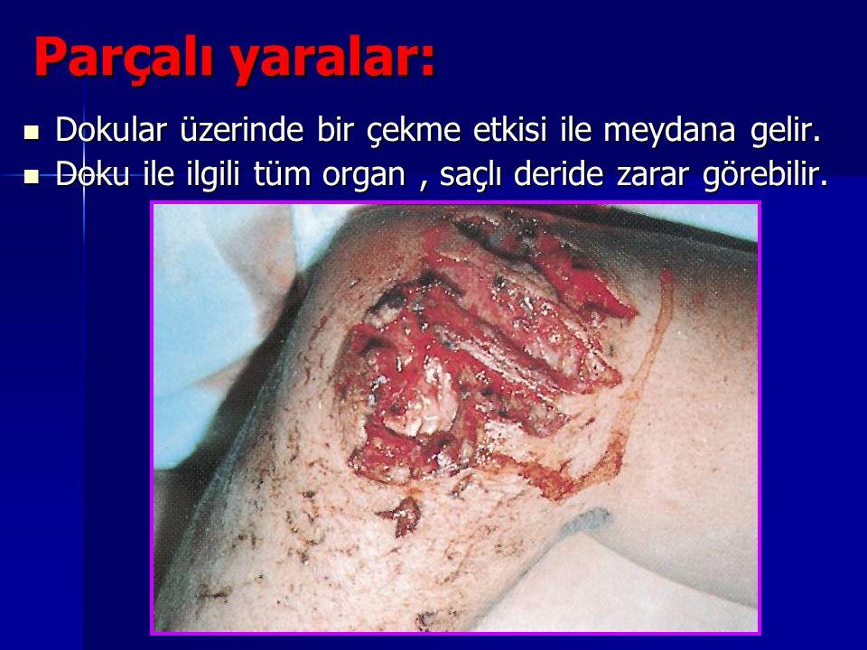 Parçalı yaralar: Dokular üzerinde bir çekme etkisi ile meydana gelir.