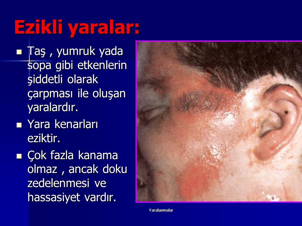 Ezikli yaralar: Taş , yumruk yada sopa gibi etkenlerin şiddetli olarak çarpması ile oluşan yaralardır.