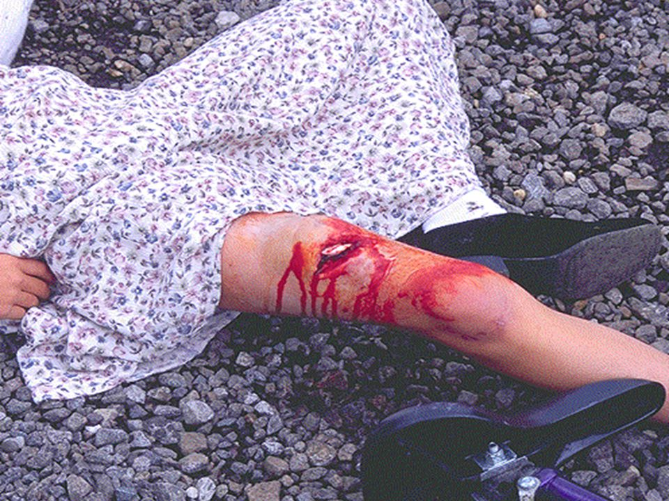 Yaralanmalar