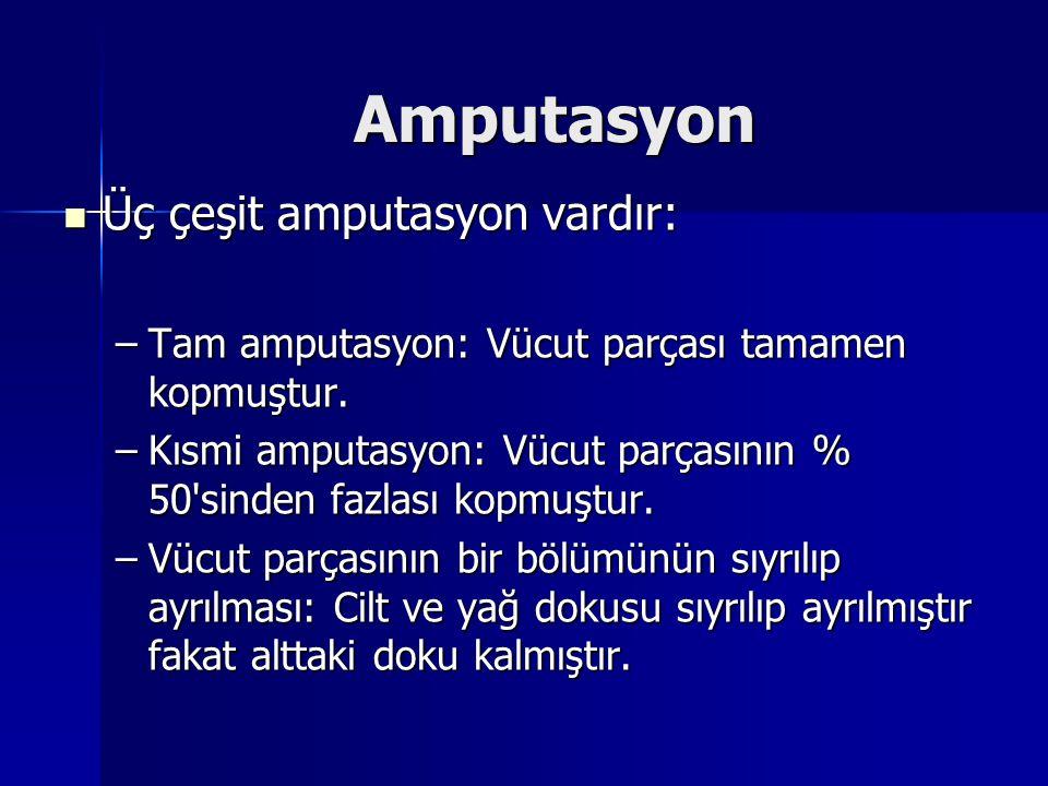 Amputasyon Üç çeşit amputasyon vardır:
