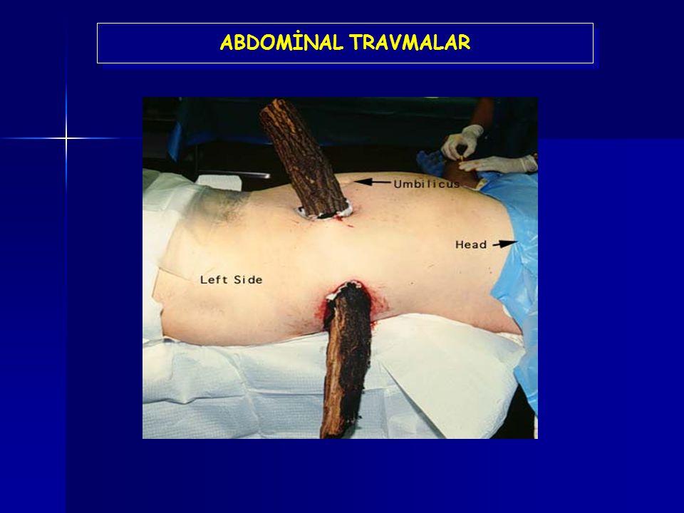 ABDOMİNAL TRAVMALAR Bu görünümde bir hastada ilk bakışta bize oldukça ürkütücü ve batın içinde büyük bir organ hasarı oluşturmuş gibi düşündürebilir.