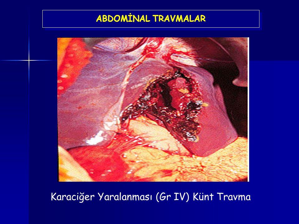 Karaciğer Yaralanması (Gr IV) Künt Travma