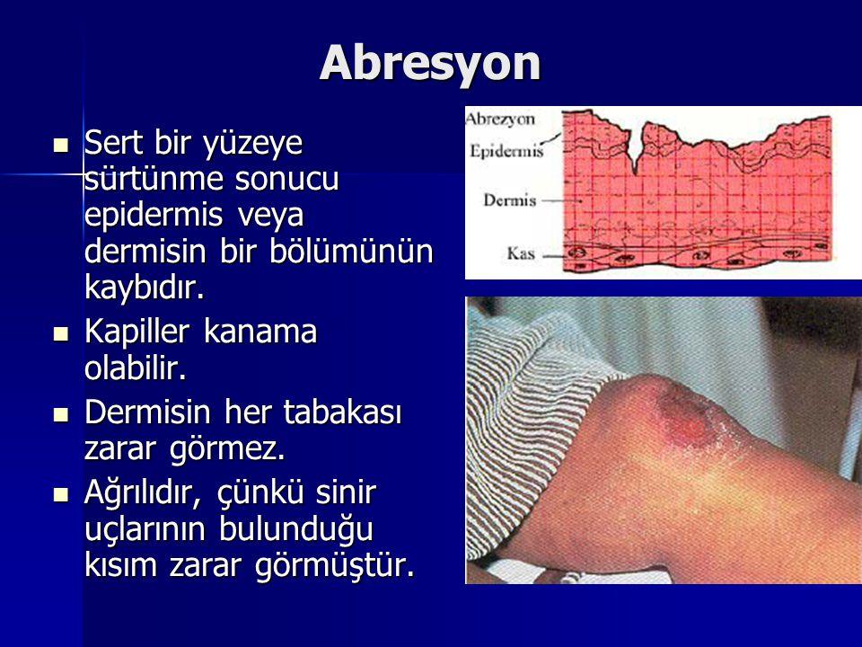 Abresyon Sert bir yüzeye sürtünme sonucu epidermis veya dermisin bir bölümünün kaybıdır. Kapiller kanama olabilir.