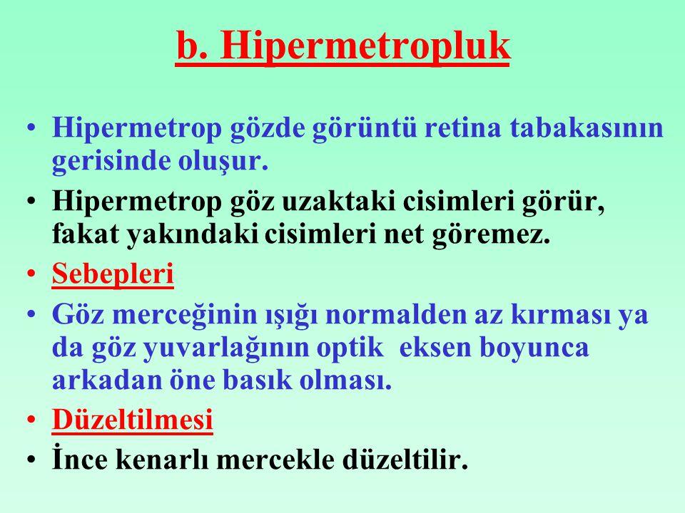 b. Hipermetropluk Hipermetrop gözde görüntü retina tabakasının gerisinde oluşur.