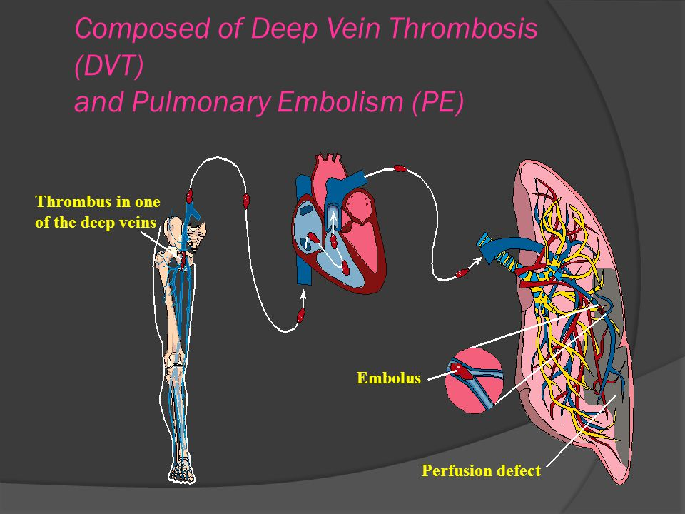 Composed of Deep Vein Thrombosis (DVT) and Pulmonary Embolism (PE)
