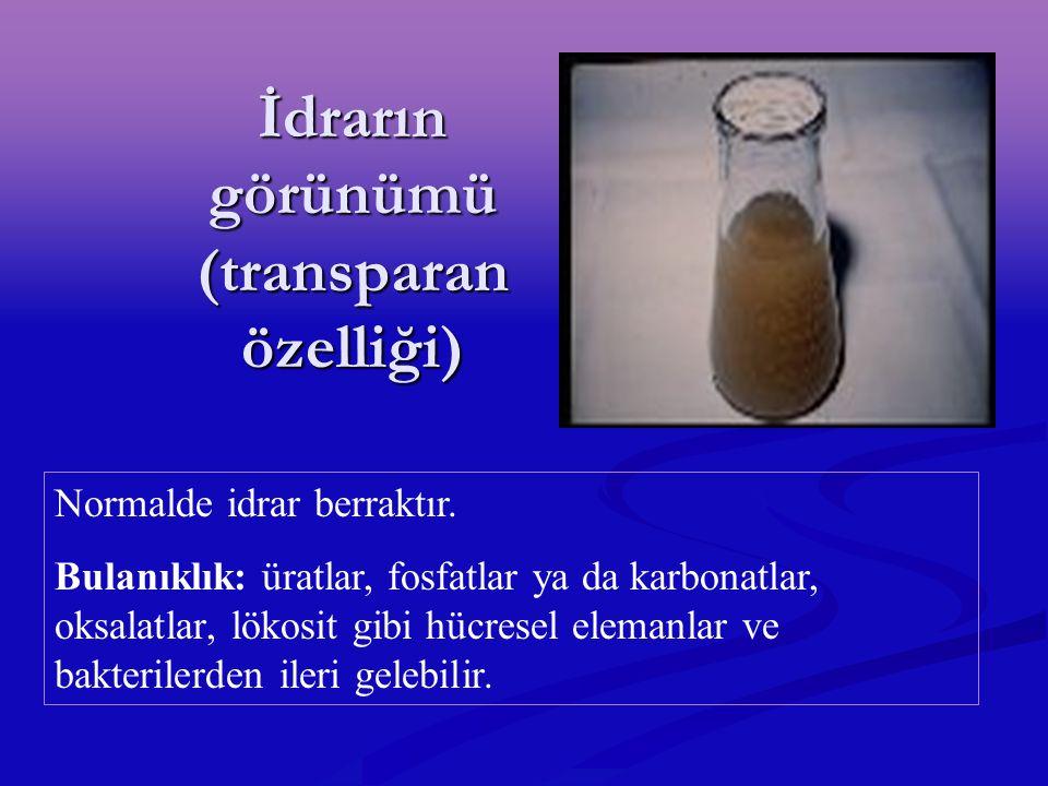 İdrarın görünümü (transparan özelliği)