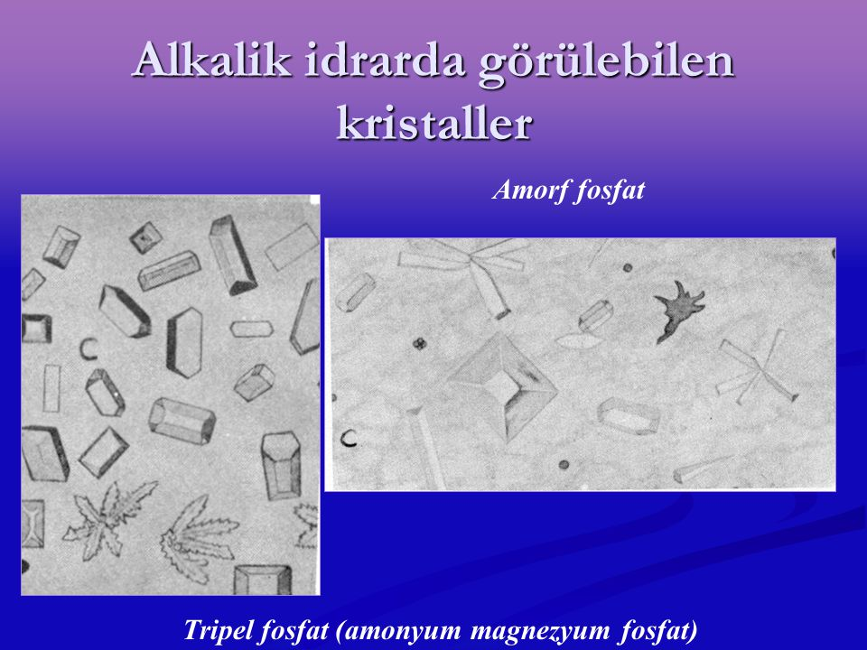 Alkalik idrarda görülebilen kristaller