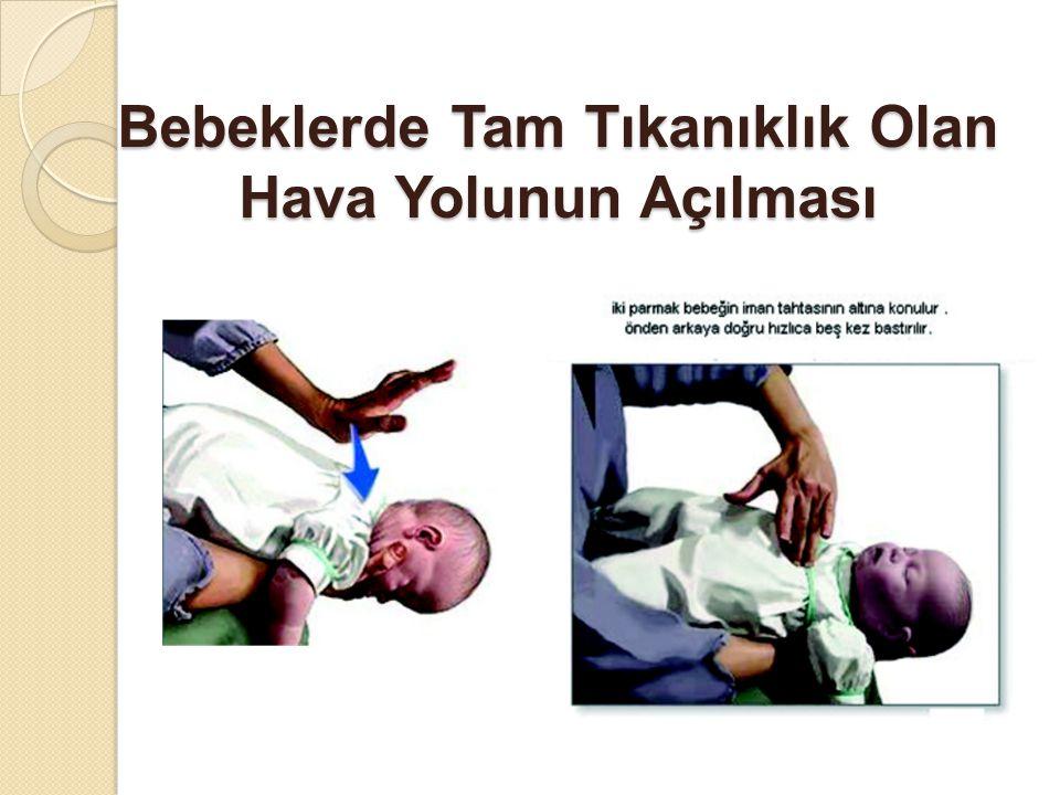 Bebeklerde Tam Tıkanıklık Olan Hava Yolunun Açılması