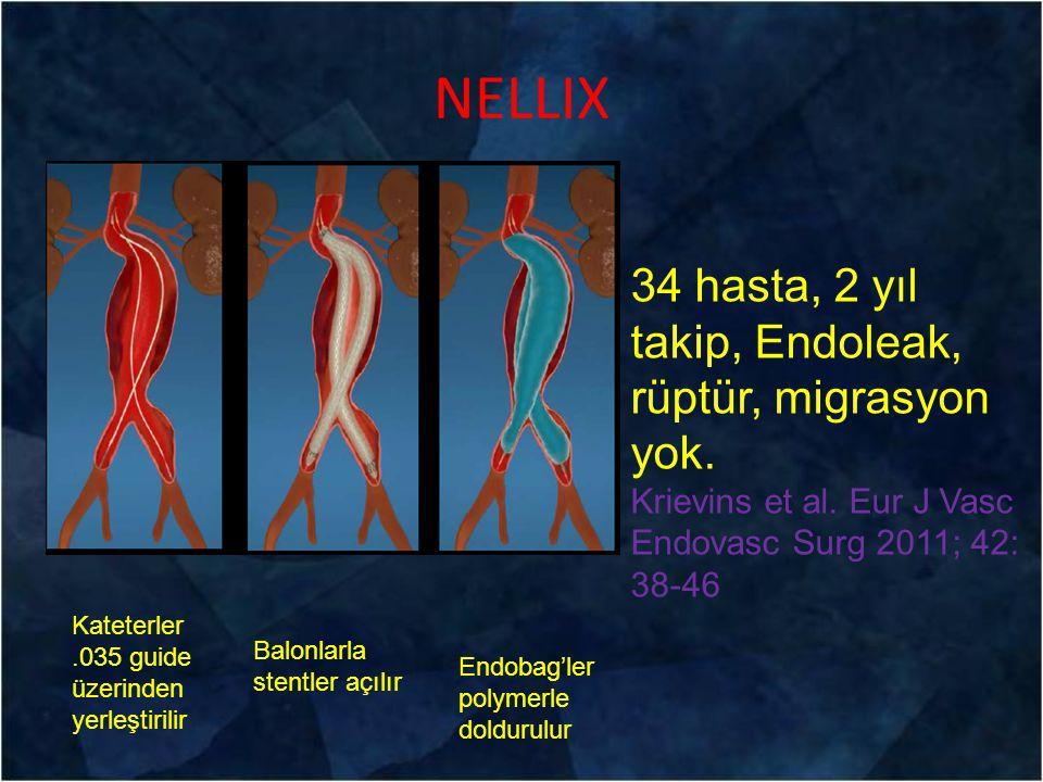 NELLIX 34 hasta, 2 yıl takip, Endoleak, rüptür, migrasyon yok.