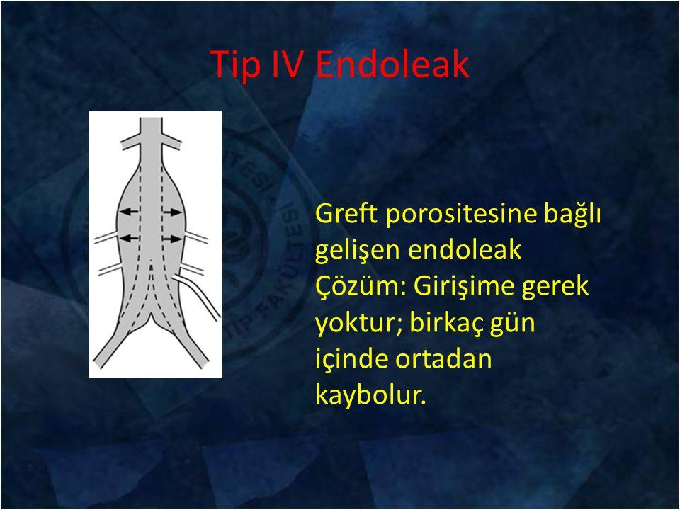Tip IV Endoleak Greft porositesine bağlı gelişen endoleak