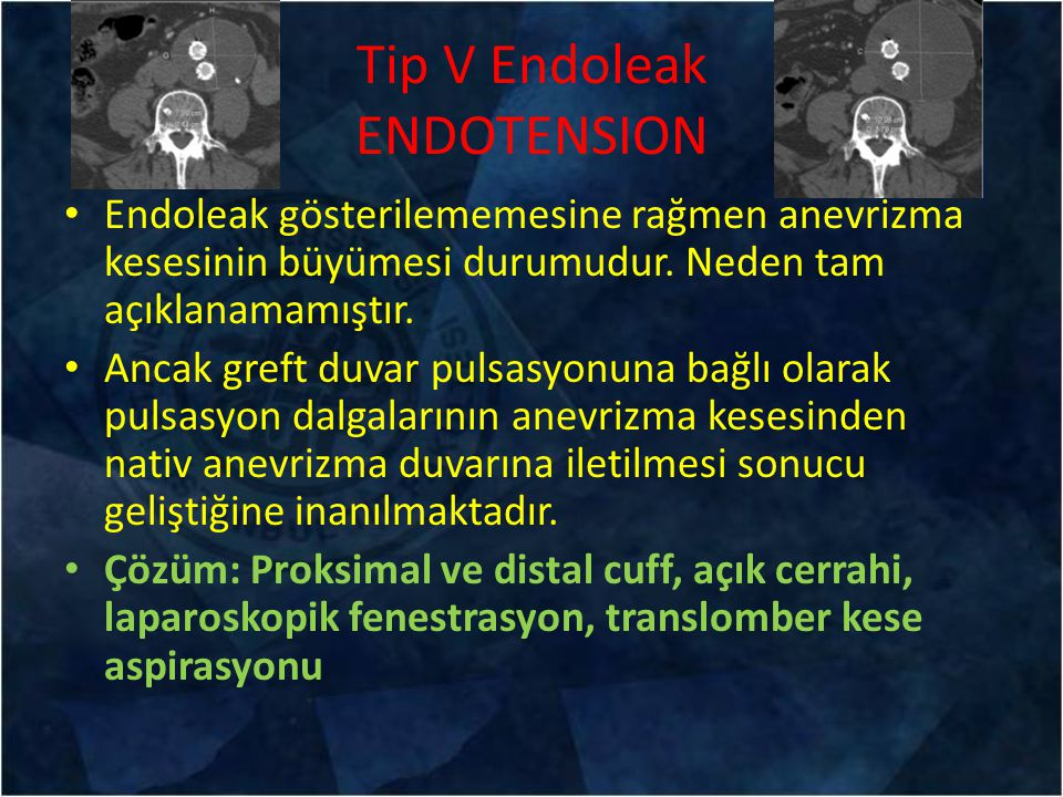 Tip V Endoleak ENDOTENSION
