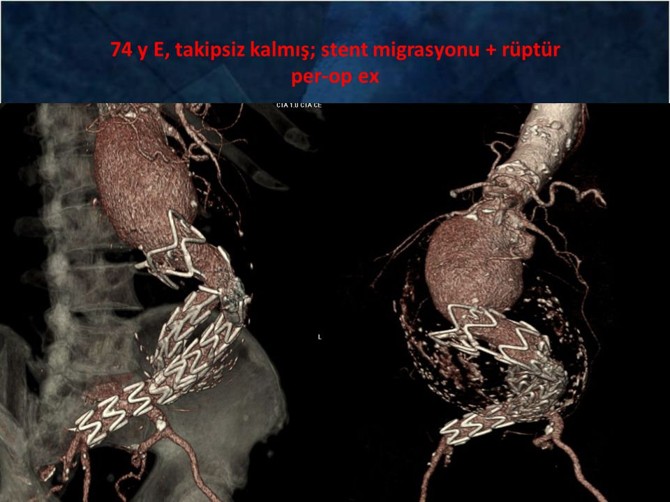 74 y E, takipsiz kalmış; stent migrasyonu + rüptür per-op ex