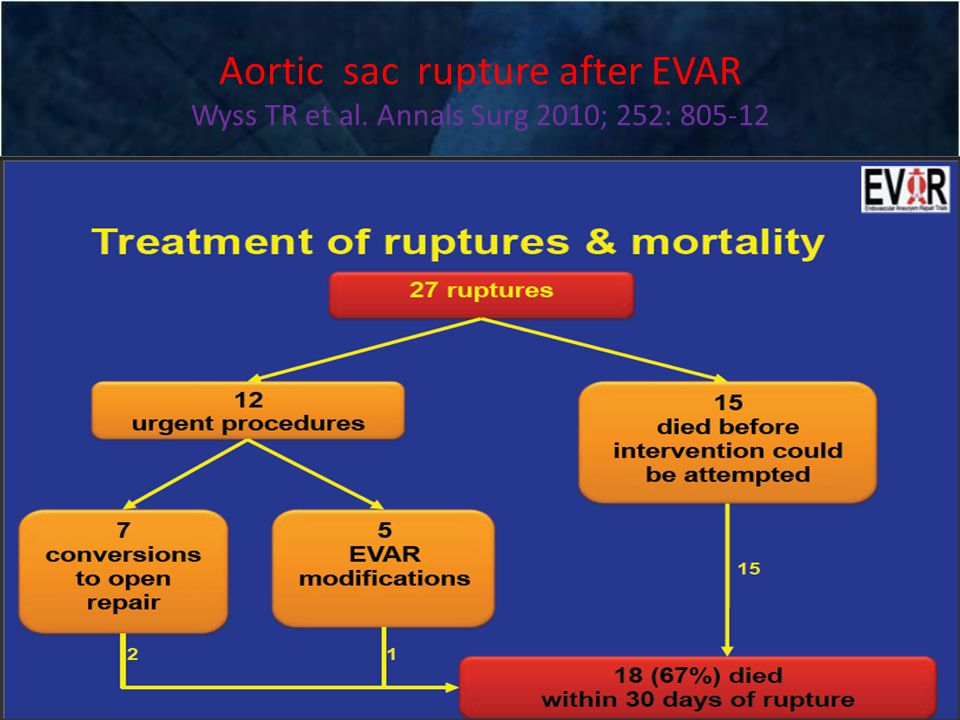 Aortic sac rupture after EVAR Wyss TR et al